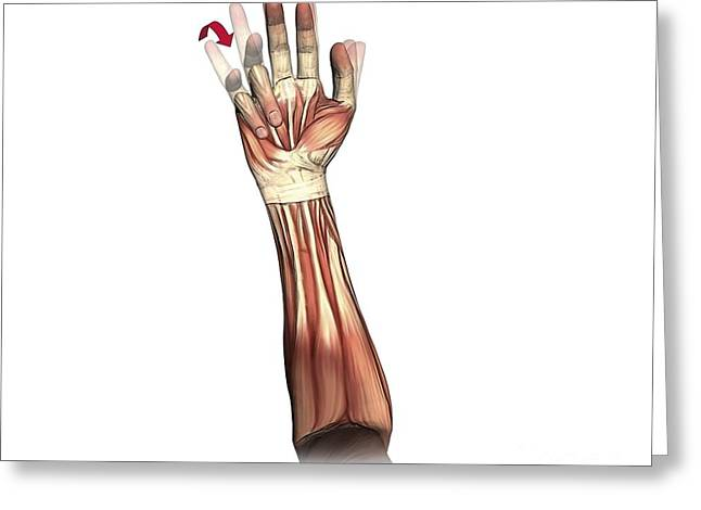 Lumbrical Greeting Cards - Little And Ring Finger Flexion, Artwork Greeting Card by D & L Graphics
