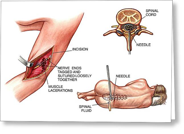 Lumbar Puncture And Radial Nerve Surgery Greeting Card by John T. Alesi