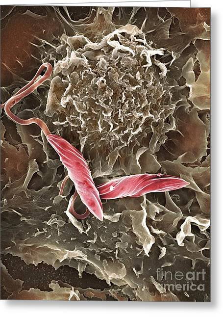 Phagocytosing Greeting Cards - Macrophage Attacking A Foreign Body, Sem Greeting Card by Spl