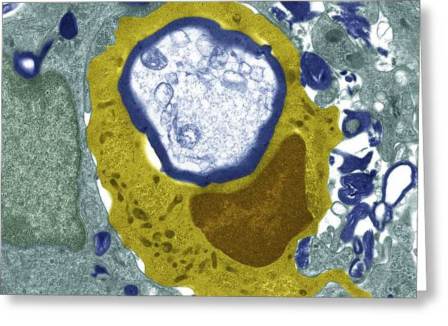 Engulfing Photographs Greeting Cards - Macrophage engulfing a nerve cell, TEM Greeting Card by Science Photo Library