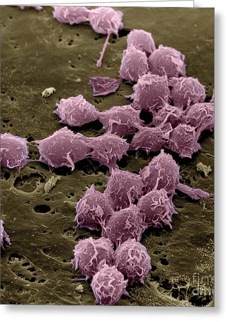 Scanning Electron Micrograph Greeting Cards - Macrophages On The Surface Greeting Card by David M. Phillips