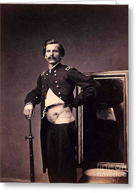 U.s Army Greeting Cards - Major H.L. Barnum - Civil war wound Greeting Card by Pg Reproductions