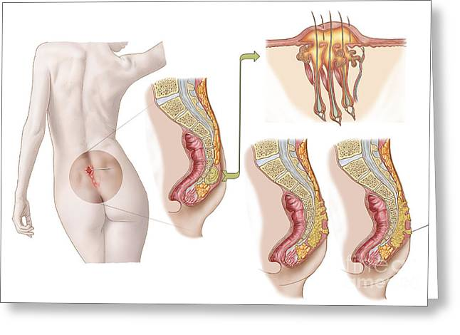 Incision Greeting Cards - Medical Ilustration Of A Pilonidal Cyst Greeting Card by Stocktrek Images