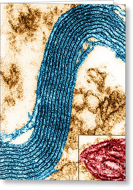 Electron Microscopy Greeting Cards - Membrane Ultrastructure In Nerve Cells Greeting Card by Fernandez-Moran/Omikron
