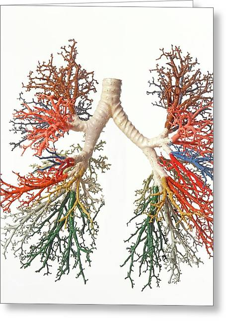 Model Of Branches Of Bronchial Tree Greeting Card by Dorling Kindersley/uig