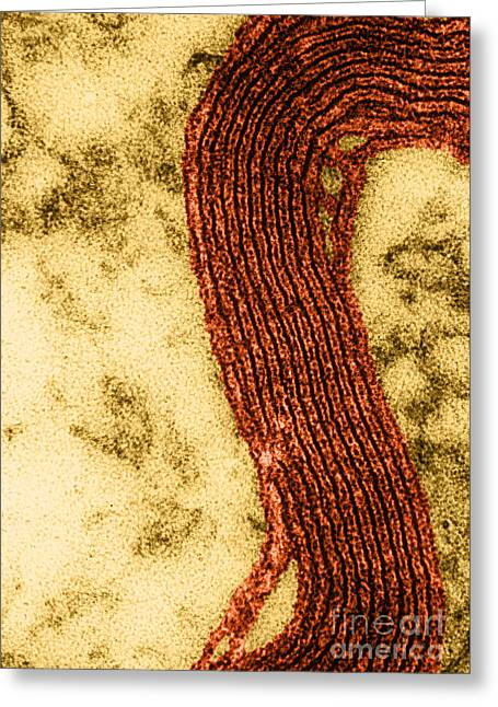 Electron Microscopy Greeting Cards - Myelin Sheath, Em Greeting Card by Omikron