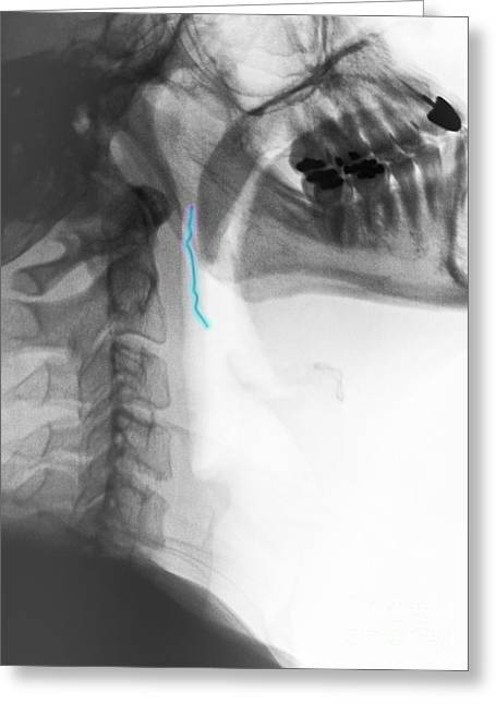 Psychiatric Greeting Cards - Neck X-ray Of Swallowed Paper Clip Greeting Card by Scott Camazine