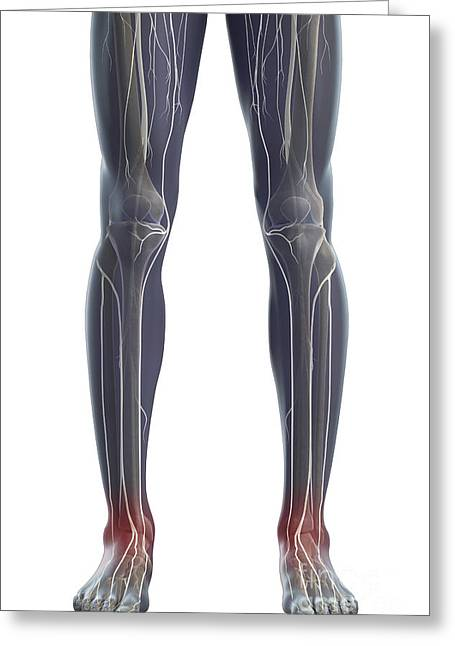 Tibial Nerve Greeting Cards - Nerves Of The Legs Greeting Card by Science Picture Co