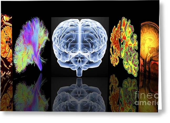 Ssi Greeting Cards - Neurology Slide Show Greeting Card by Alfred Pasieka