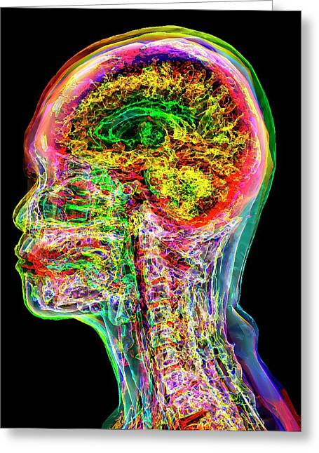 Normal Adult Head And Neck Greeting Card by K H Fung