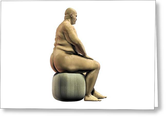 Obesity Greeting Cards - Obese man, artwork Greeting Card by Science Photo Library