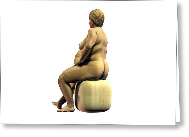 Obesity Greeting Cards - Obese woman, artwork Greeting Card by Science Photo Library
