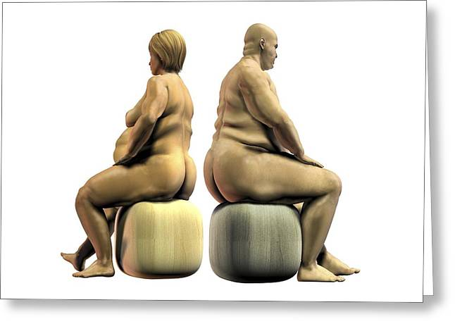 Obesity Greeting Cards - Obesity, artwork Greeting Card by Science Photo Library