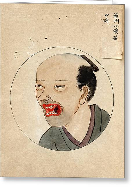 Oral Cancer Patient Greeting Card by National Library Of Medicine