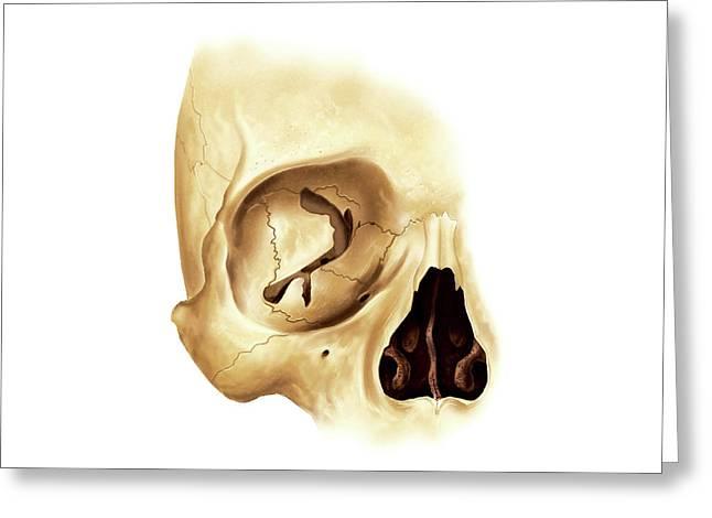 Orbital Cavity Greeting Card by Asklepios Medical Atlas
