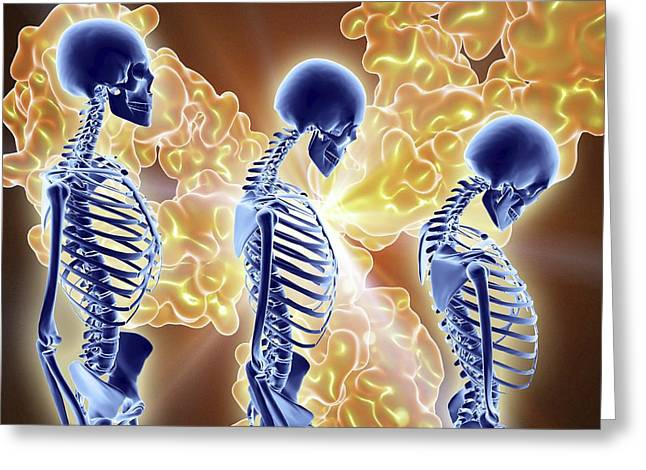Osteoporosis Treatment With Antibodies Greeting Card by Alfred Pasieka