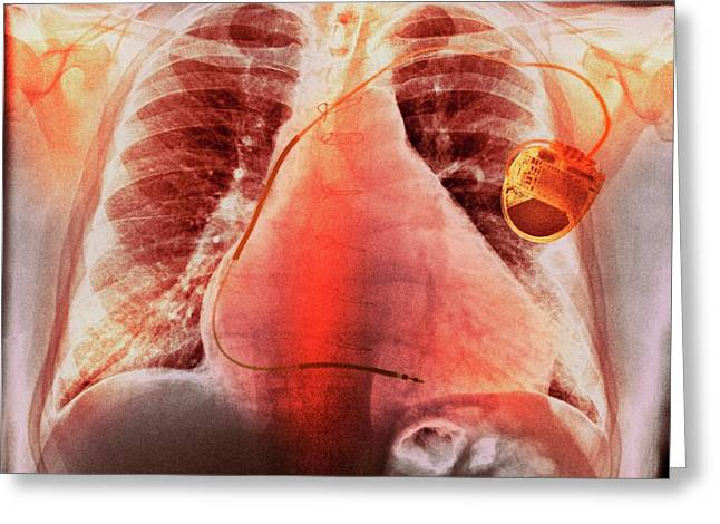 Pacemaker In Heart Disease Greeting Card by Dr P. Marazzi