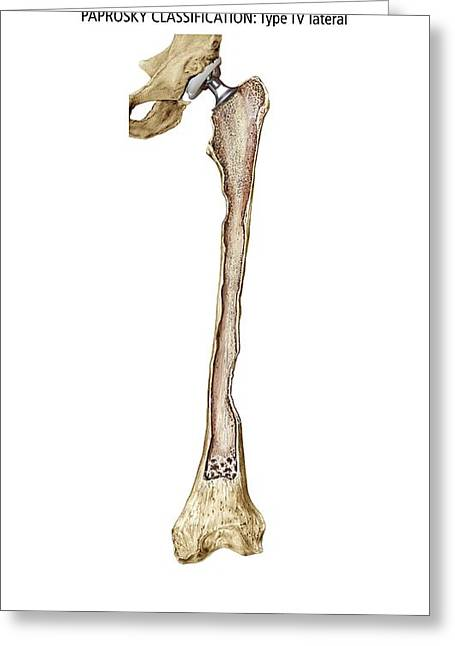 Human Degradation Greeting Cards - Paprosky Femur Defect, Type Iv Lateral Greeting Card by D & L Graphics