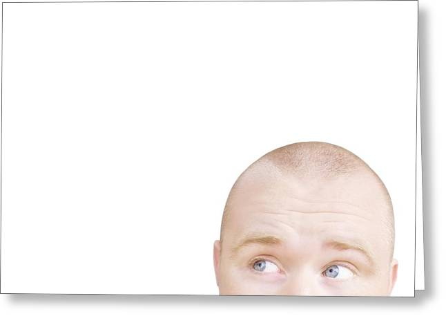 30-35 Years Greeting Cards - Part Of A Mans Head Looking Sideways Greeting Card by Chris and Kate Knorr
