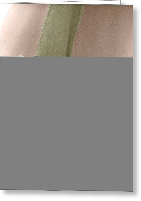 Replacement Greeting Cards - Partial Knee Replacement Greeting Card by Science Photo Library