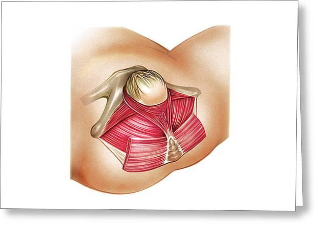Pelvic Floor Muscles In Childbirth Greeting Card by Asklepios Medical Atlas