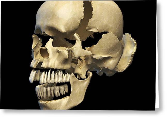 Zygomatic Bones Greeting Cards - Perspective View Of Human Skull Greeting Card by Leonello Calvetti