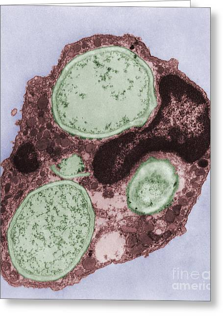 Phagocytosis Greeting Cards - Phagocytosis Greeting Card by Joseph F. Gennaro Jr.