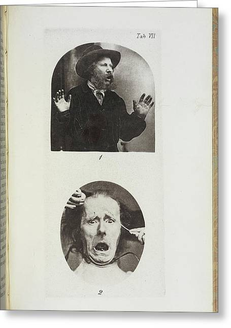 Photographs By Dr Duchenne Greeting Card by British Library