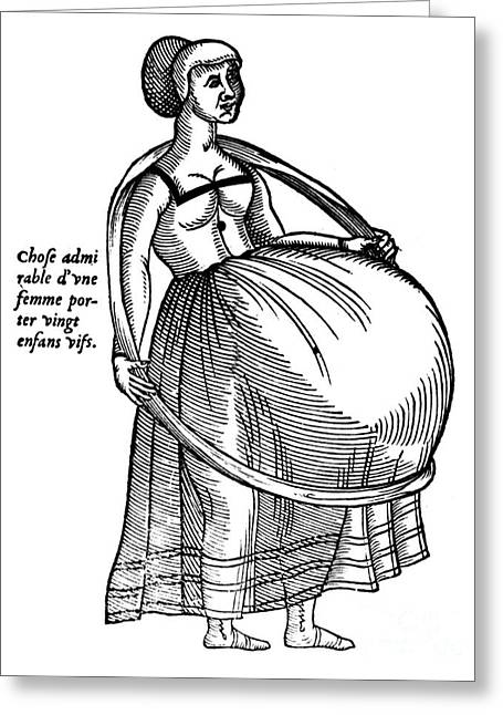 Pregnancy Greeting Cards - Pregnancy, 1575 Greeting Card by Granger