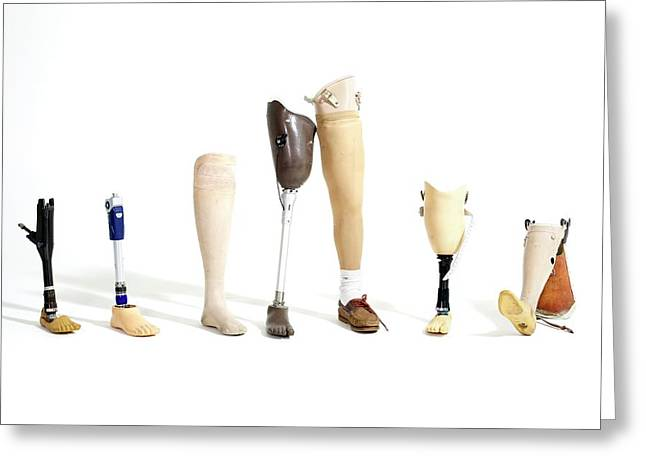 Prosthetic Legs Greeting Card by Gregory Davies