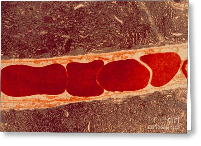 Red Blood Cell Greeting Cards - Red Blood Cells In A Capillary Vessel Greeting Card by David M. Phillips