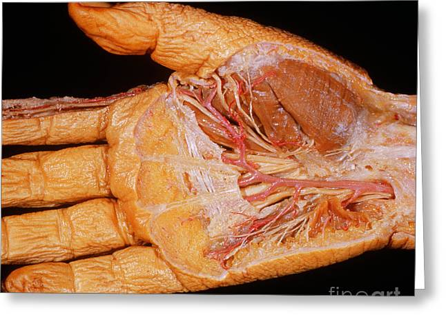 Lumbrical Greeting Cards - Right Hand, Palmar Dissection Greeting Card by VideoSurgery