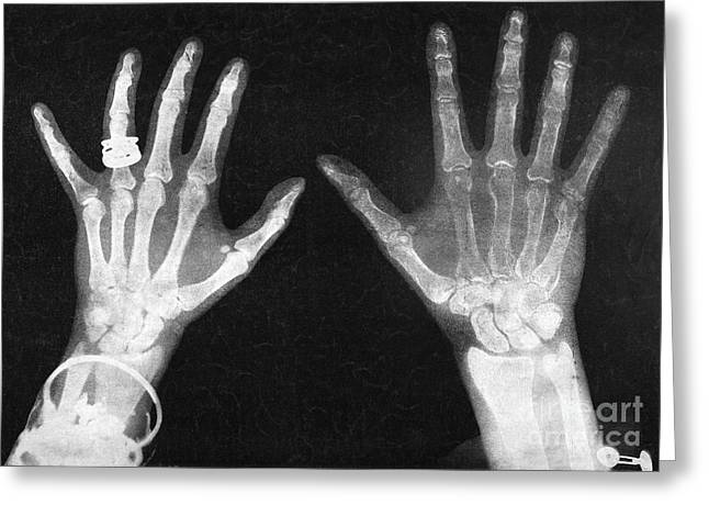 Duchess Greeting Cards - Roentgen X-ray, 1896 Greeting Card by Granger