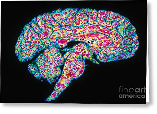 Color Enhanced Greeting Cards - Sagittal Section Of Brain Greeting Card by Scott Camazine