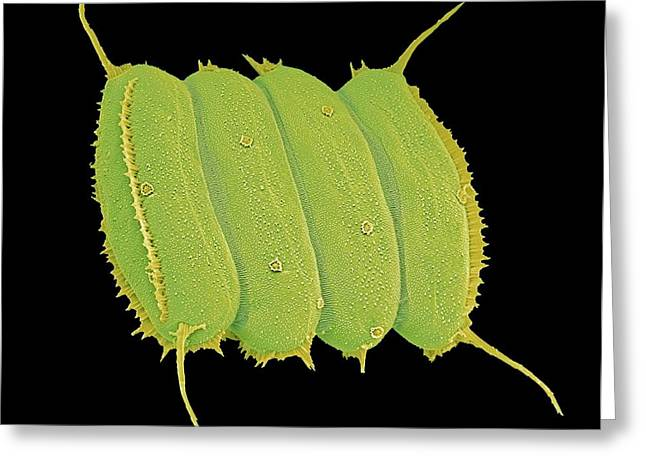 Alga Greeting Cards - Scenedesmus algae, SEM Greeting Card by Science Photo Library
