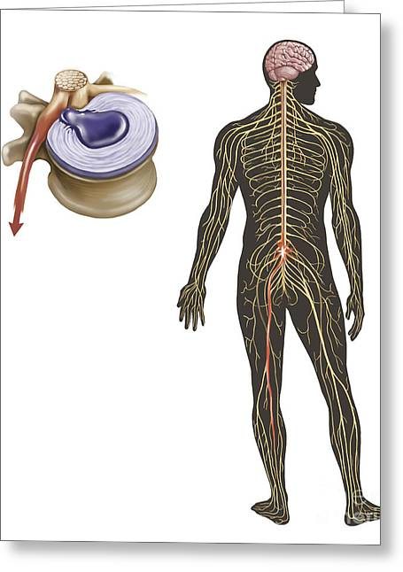 Sciatic Nerves Greeting Cards - Sciatica Caused From Herniated Disc Greeting Card by TriFocal Communications