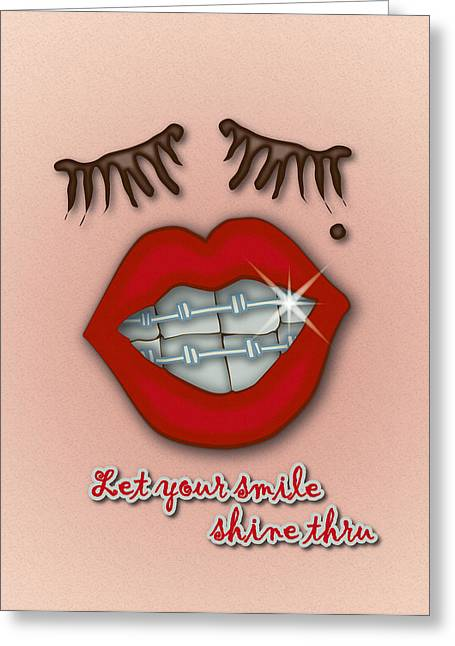 Birthmark Greeting Cards - Shiny Braces Red Lips Mole and Thick Eyelashes Greeting Card by Ym Chin