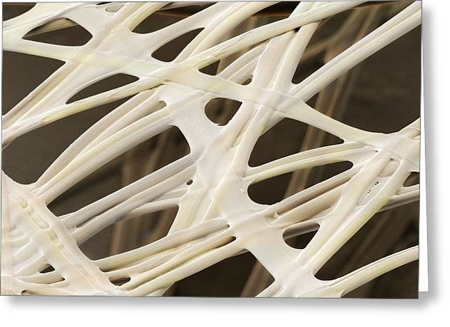 Cocoon Greeting Cards - Silkworm silk fibres (SEM) Greeting Card by Science Photo Library