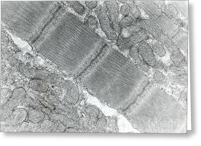 Striated Muscle Greeting Cards - Skeletal Muscle Of Rat, Tem Greeting Card by David M. Phillips