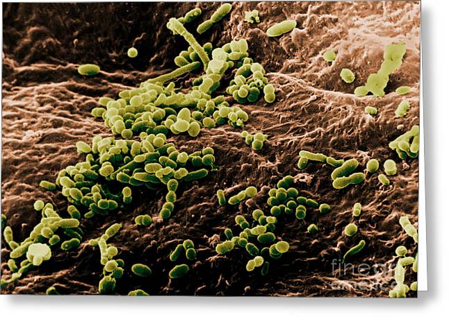 Sem Greeting Cards - Skin Bacteria, Sem Greeting Card by David M. Phillips