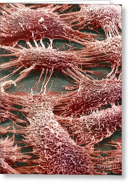 Sem Greeting Cards - Skin Epithelial Cells Greeting Card by David M. Phillips