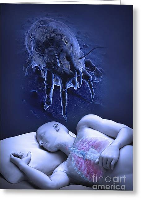 Allergen Greeting Cards - Sleep And Allergies Greeting Card by Science Picture Co