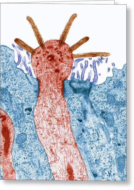 Bipolar Greeting Cards - Smell receptor, TEM Greeting Card by Science Photo Library