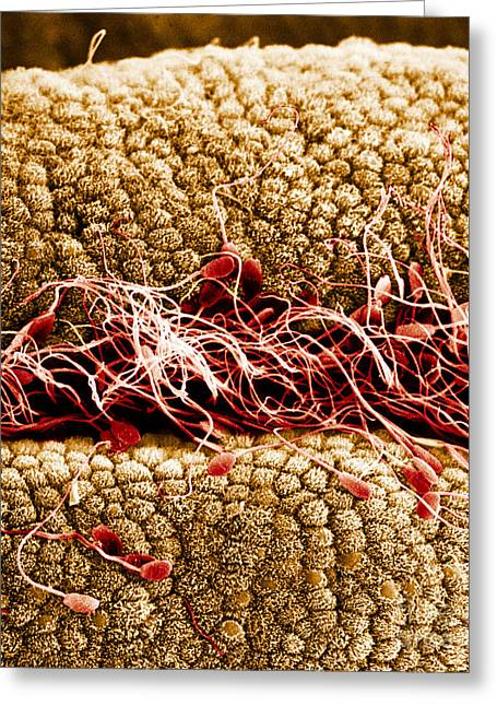 Scanning Electron Micrograph Greeting Cards - Sperm On Oviduct Surface, Sem Greeting Card by David M. Phillips