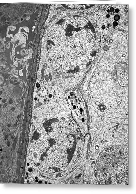 Biological Greeting Cards - Spermatogonia, TEM Greeting Card by Science Photo Library