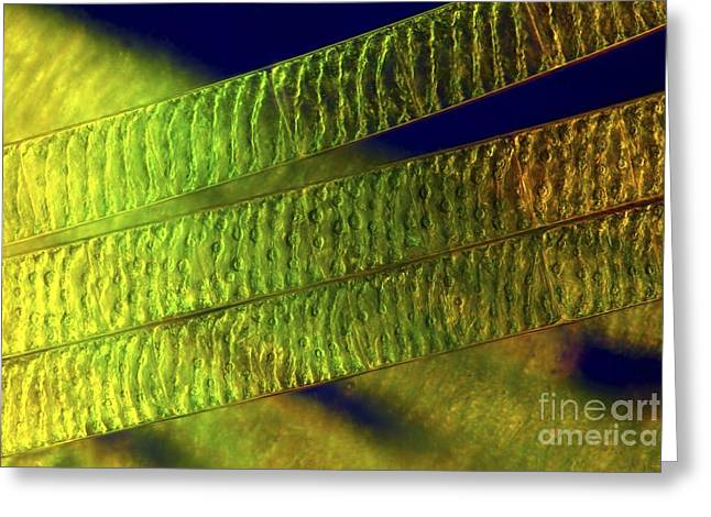 Alga Greeting Cards - Spirogyra Algae, Light Micrograph Greeting Card by Marek Mis