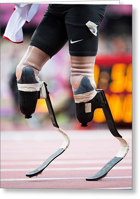 Prosthetic Greeting Cards - Sprinter at start of paralympics 100m Greeting Card by Science Photo Library