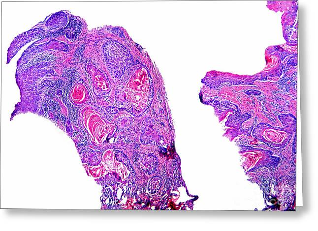 Squamous Greeting Cards - Squamous Cell Carcinoma, Odontogenic Greeting Card by Garry DeLong