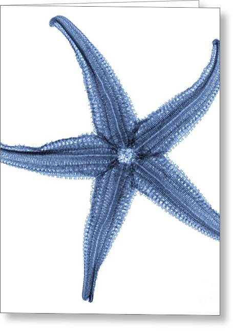 Invertebrates Greeting Cards - Starfish X-ray Greeting Card by Gustoimages