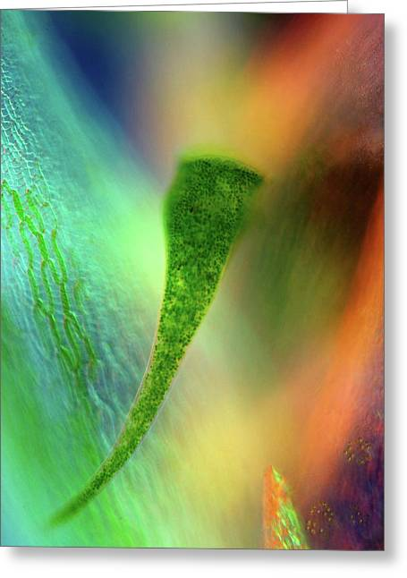 Stentor Protozoan And Sphagnum Moss Greeting Card by Marek Mis